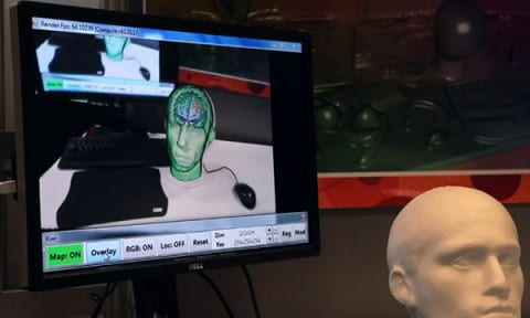 kinect_brain_scan