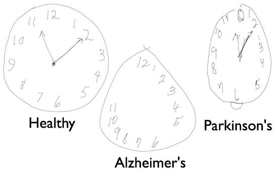 CTD test alzheimer herkennen