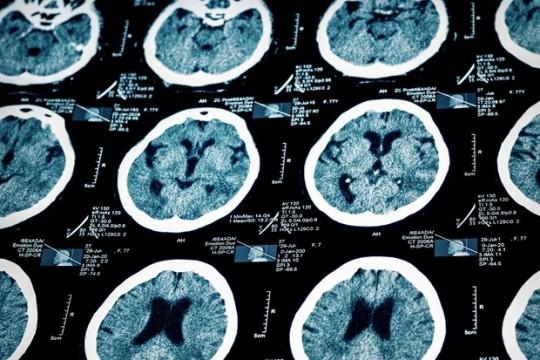 MRI-scans